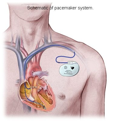 Pacemakers - Ablation chambre implantable ...